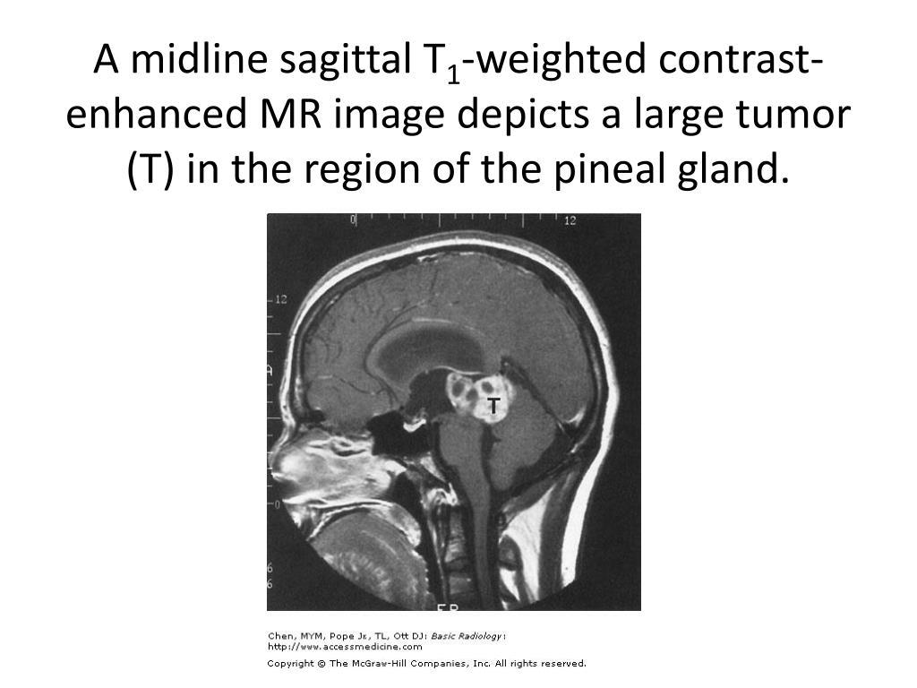 A midline sagittal T