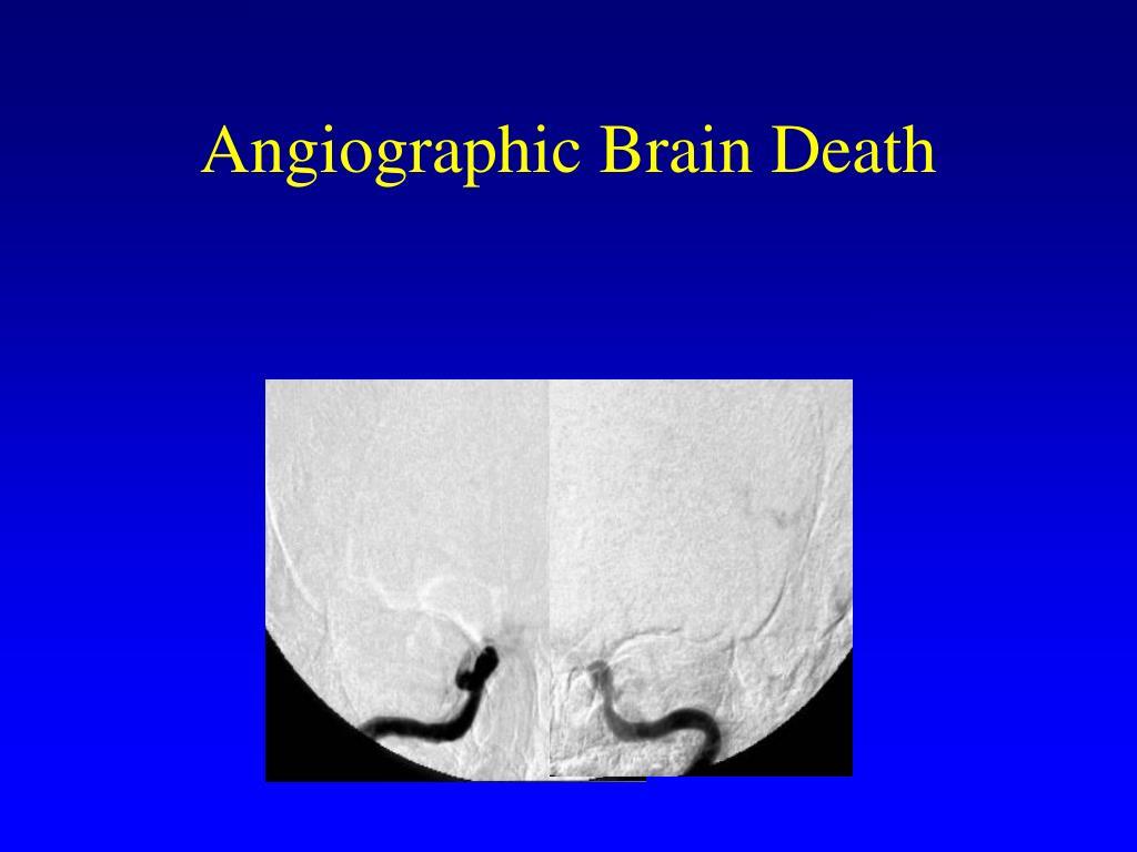 Angiographic Brain Death
