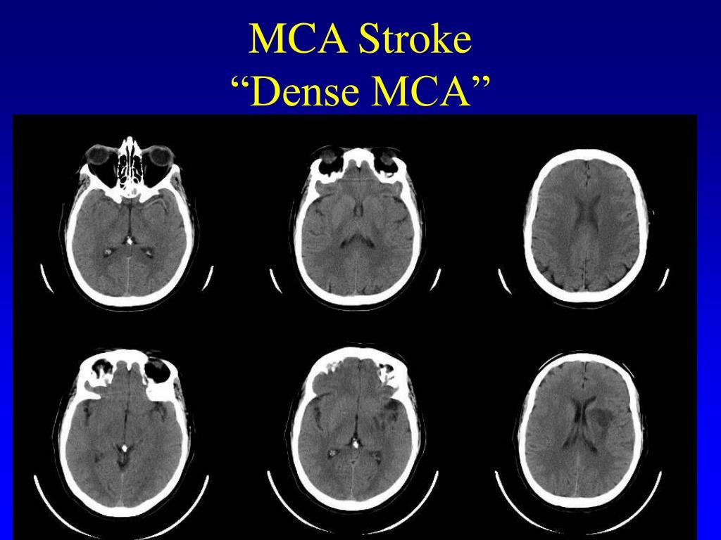 MCA Stroke