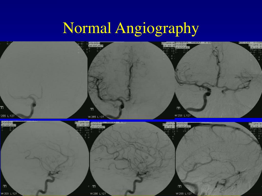 Normal Angiography