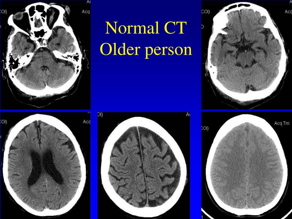 Normal CT