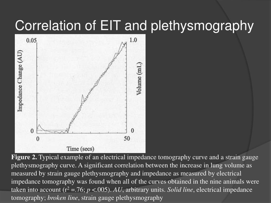 Correlation of EIT and plethysmography