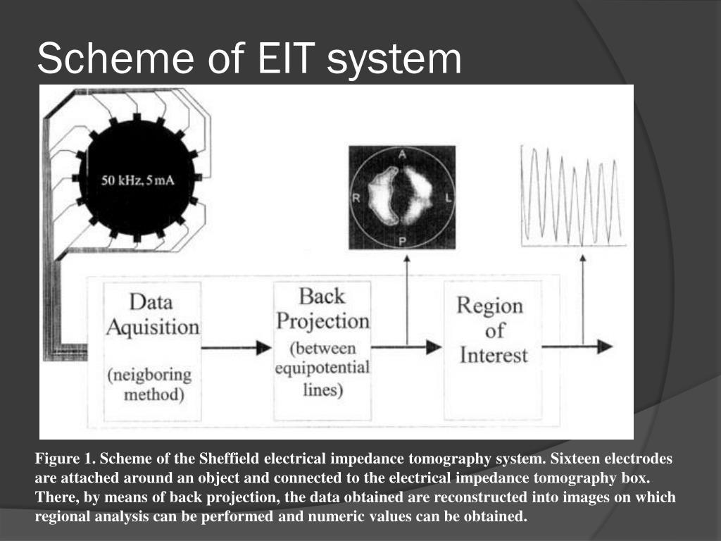 Scheme of EIT system
