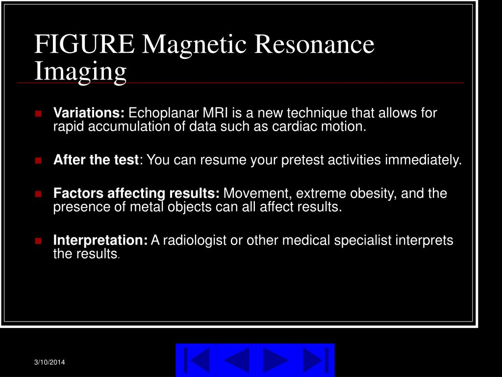 FIGURE Magnetic Resonance Imaging