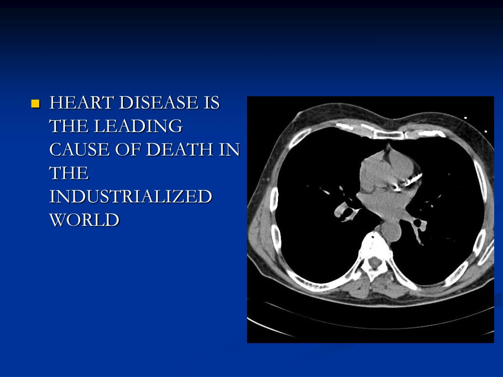 HEART DISEASE IS THE LEADING CAUSE OF DEATH IN THE INDUSTRIALIZED WORLD