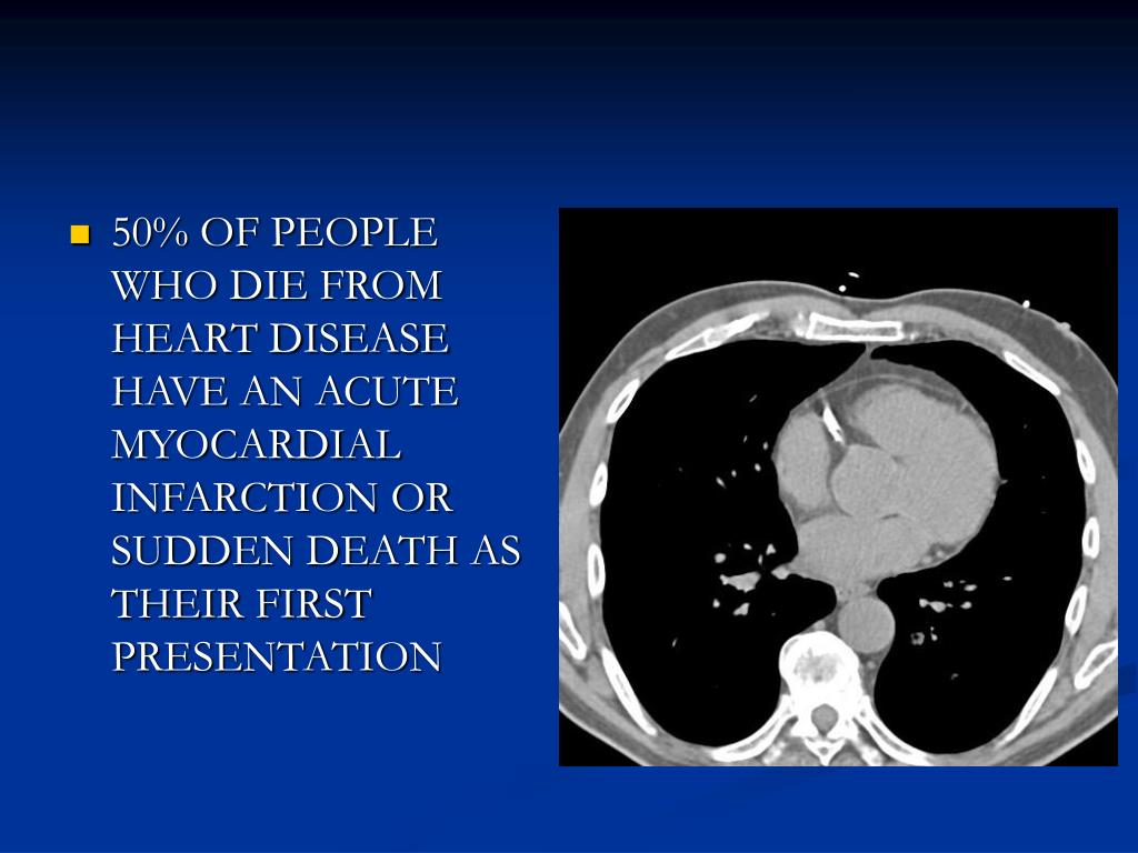50% OF PEOPLE WHO DIE FROM HEART DISEASE HAVE AN ACUTE MYOCARDIAL INFARCTION OR SUDDEN DEATH AS THEIR FIRST PRESENTATION