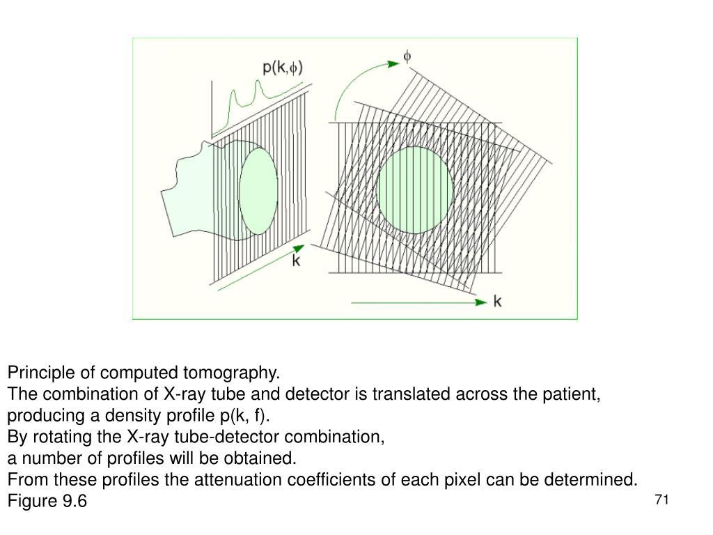 Principle of computed tomography.