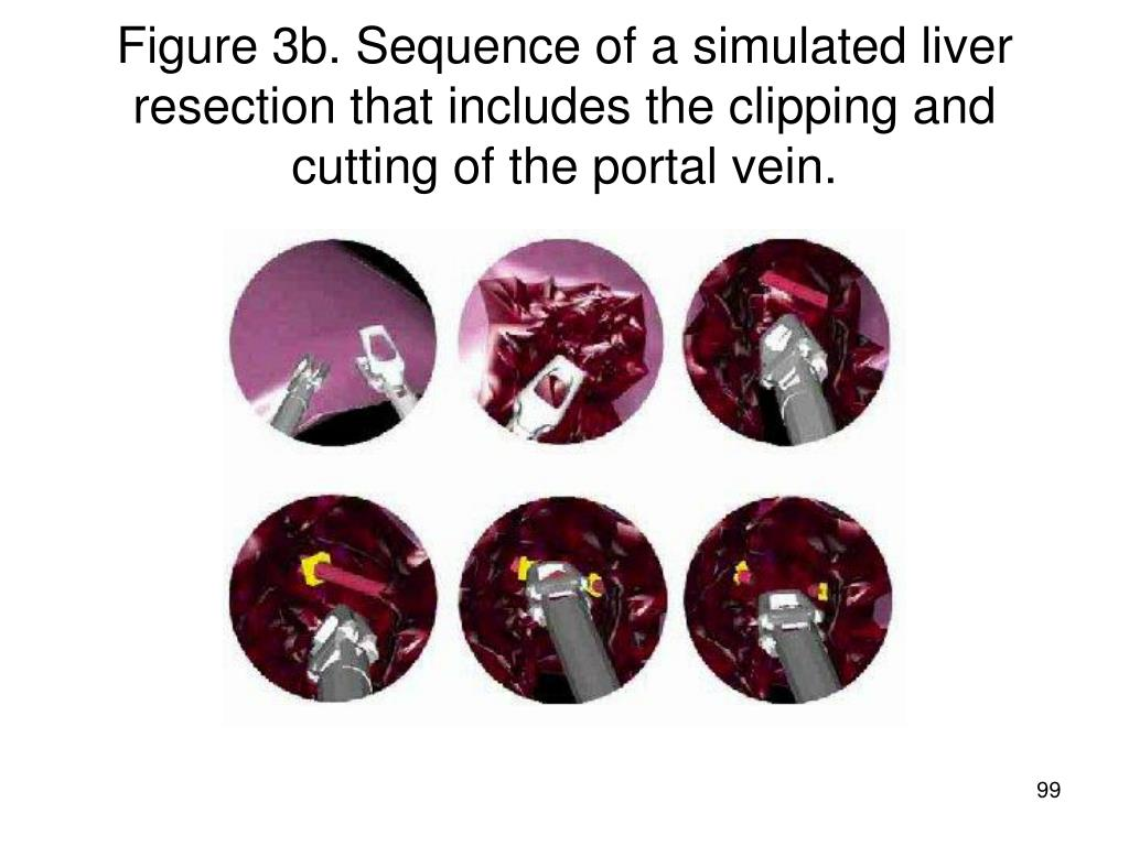 Figure 3b. Sequence of a simulated liver resection that includes the clipping and cutting of the portal vein.