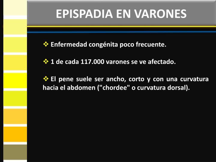 EPISPADIA EN VARONES
