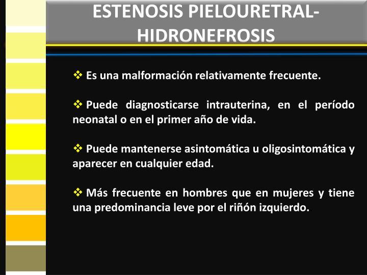 ESTENOSIS PIELOURETRAL- HIDRONEFROSIS
