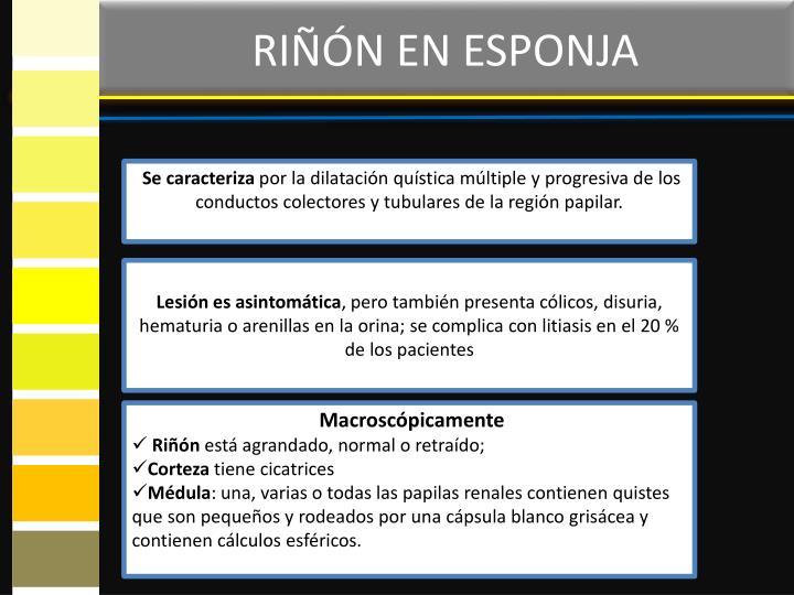 RIÑÓN EN ESPONJA