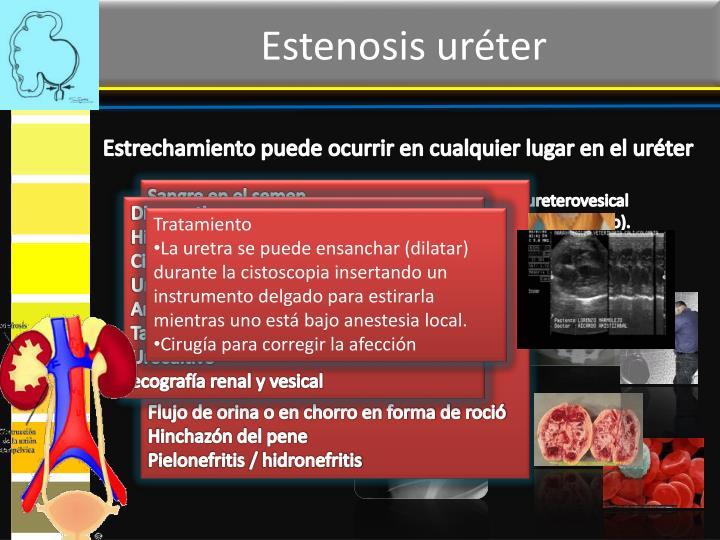 Estenosis uréter