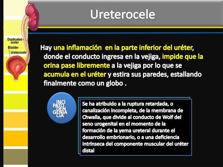 Ureterocele
