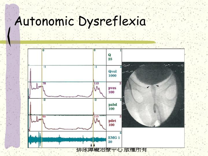 autonomic dysreflexia Autonomic dysreflexia a guide to acute nursing care prevention, and education.