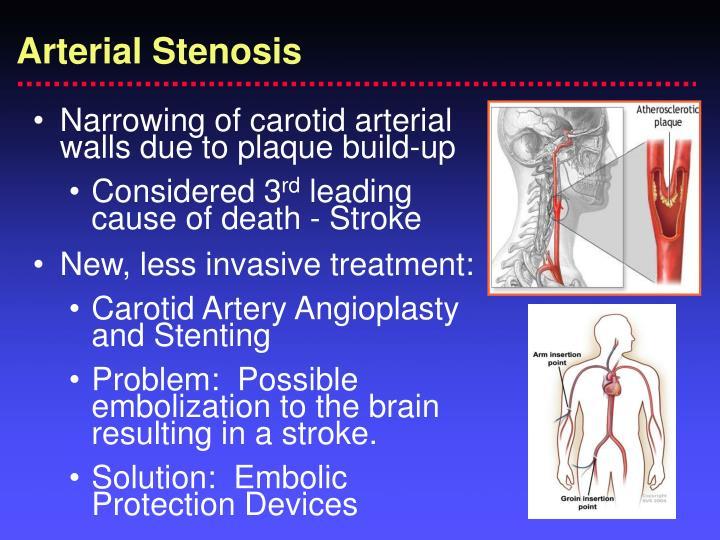 Arterial Stenosis
