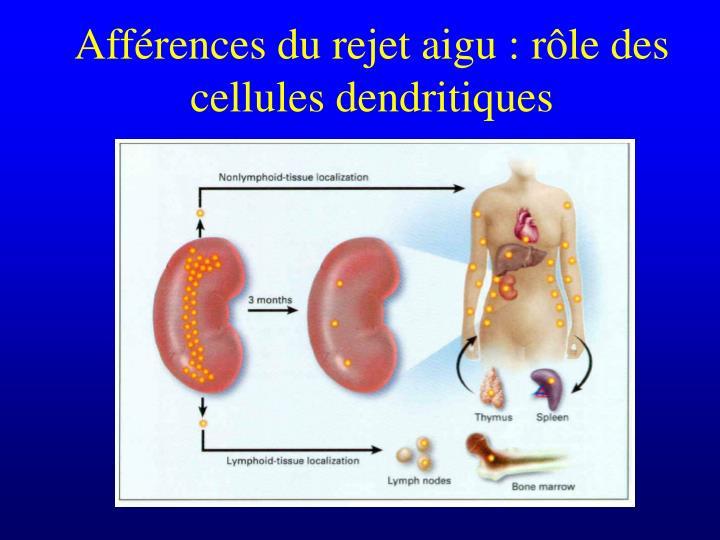 Afférences du rejet aigu : rôle des cellules dendritiques