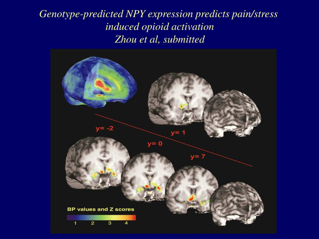 Genotype-predicted NPY expression predicts pain/stress