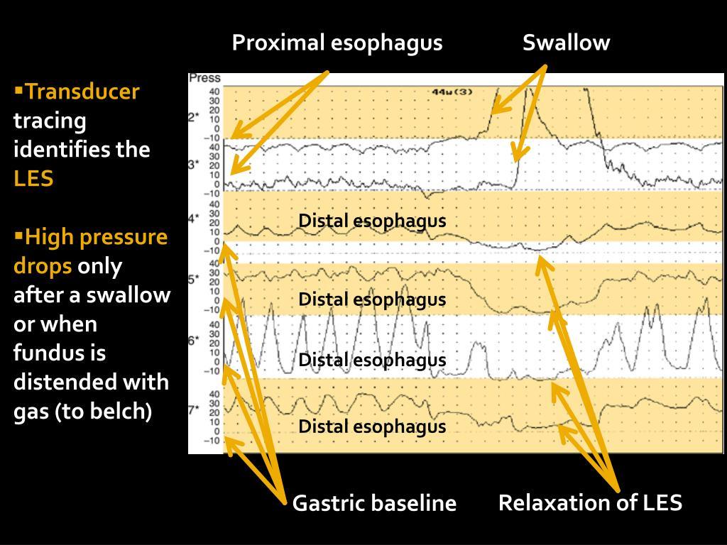 Proximal esophagus