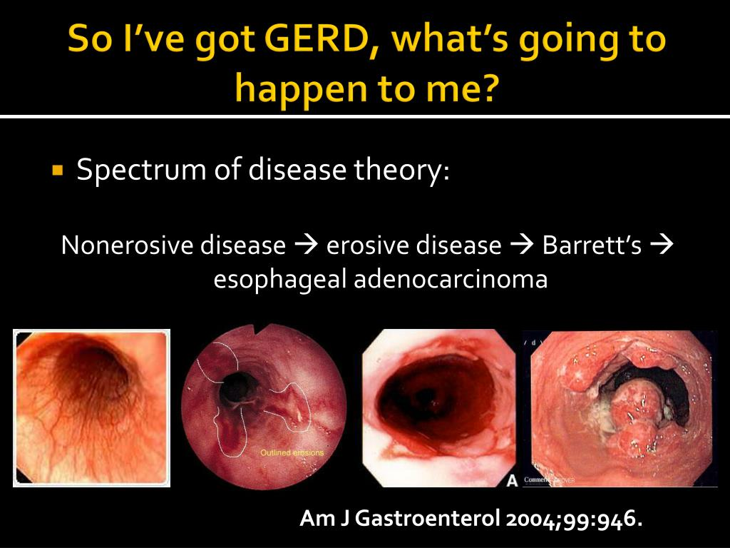So I've got GERD, what's going to happen to me?