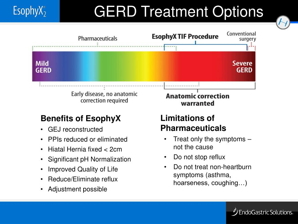 GERD Treatment Options