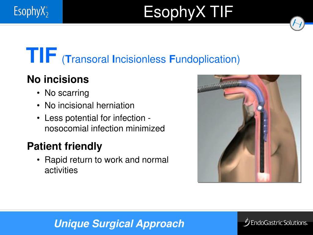 EsophyX TIF