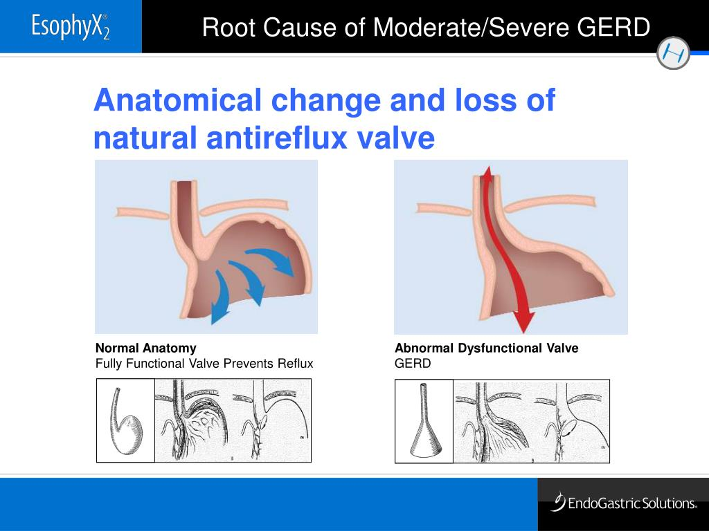 Anatomical change and loss of natural antireflux valve