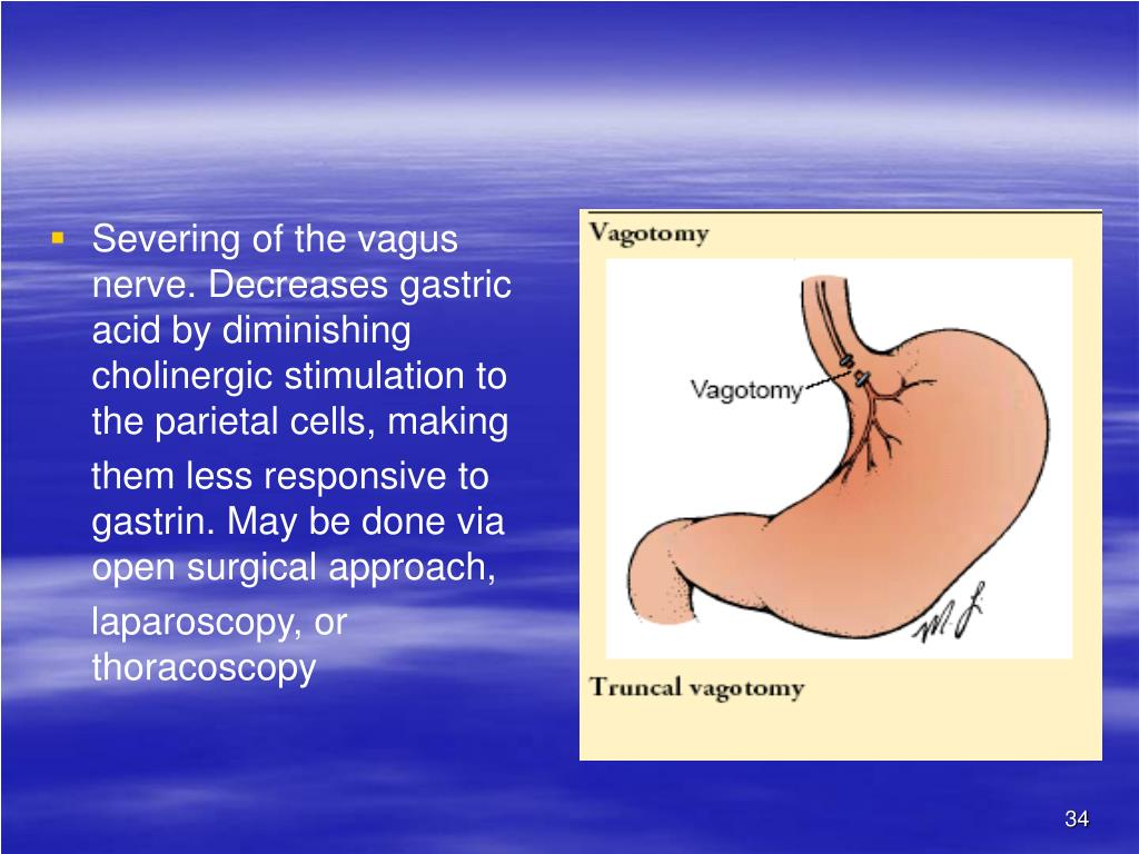 Severing of the vagus nerve. Decreases gastric acid by diminishing cholinergic stimulation to the parietal cells, making
