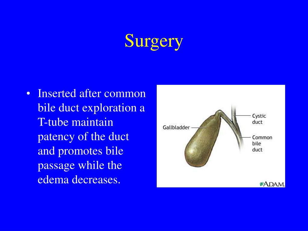 Inserted after common bile duct exploration a T-tube maintain patency of the duct and promotes bile passage while the edema decreases.