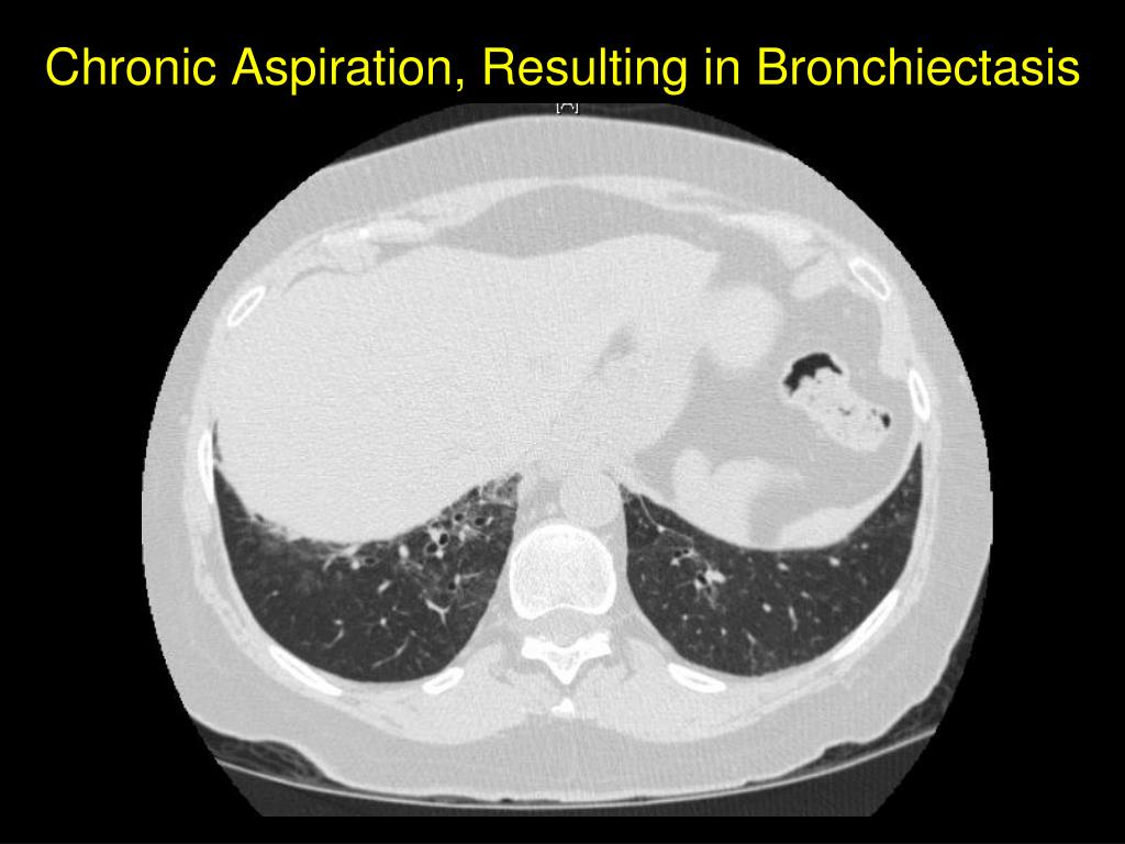 Chronic Aspiration, Resulting in Bronchiectasis