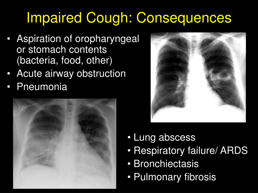 Impaired Cough: Consequences