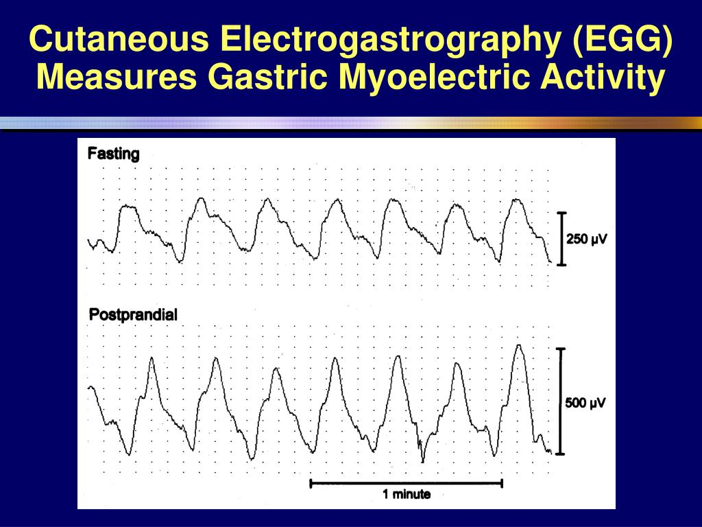 Cutaneous Electrogastrography (EGG) Measures Gastric Myoelectric Activity
