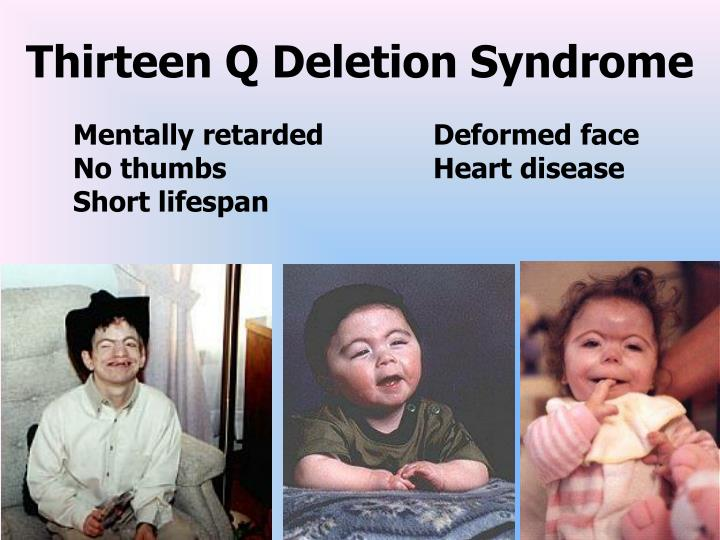 PPT - Chromosomal Mutations & their effects PowerPoint ...