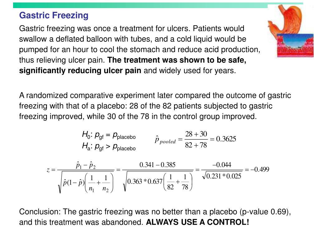 Gastric Freezing