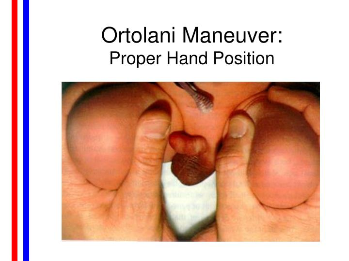Ortolani Maneuver: