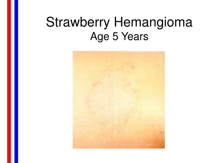 Strawberry Hemangioma