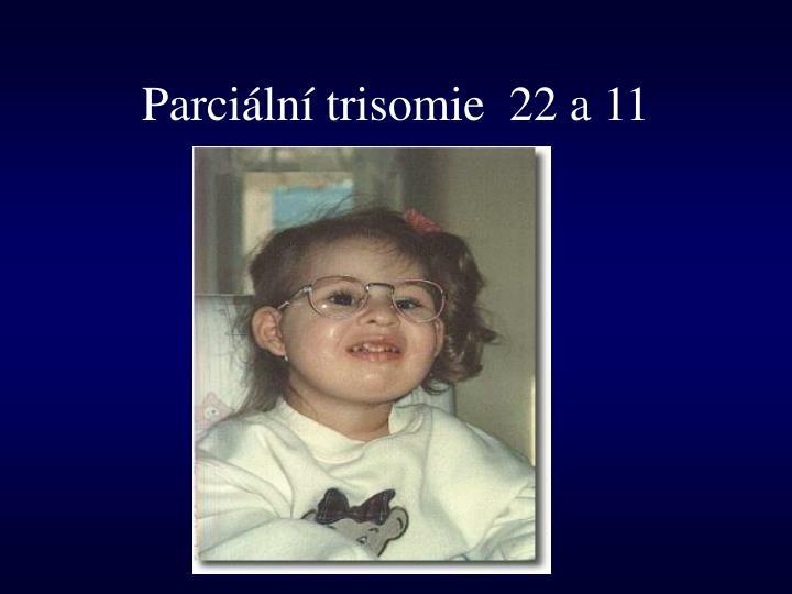 Parciální trisomie  22 a 11