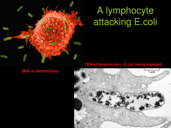 A lymphocyte attacking E.coli