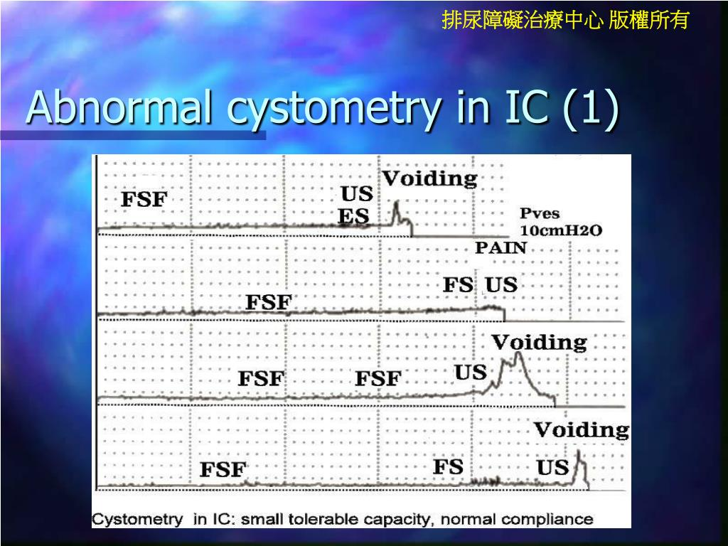 Abnormal cystometry in IC (1)