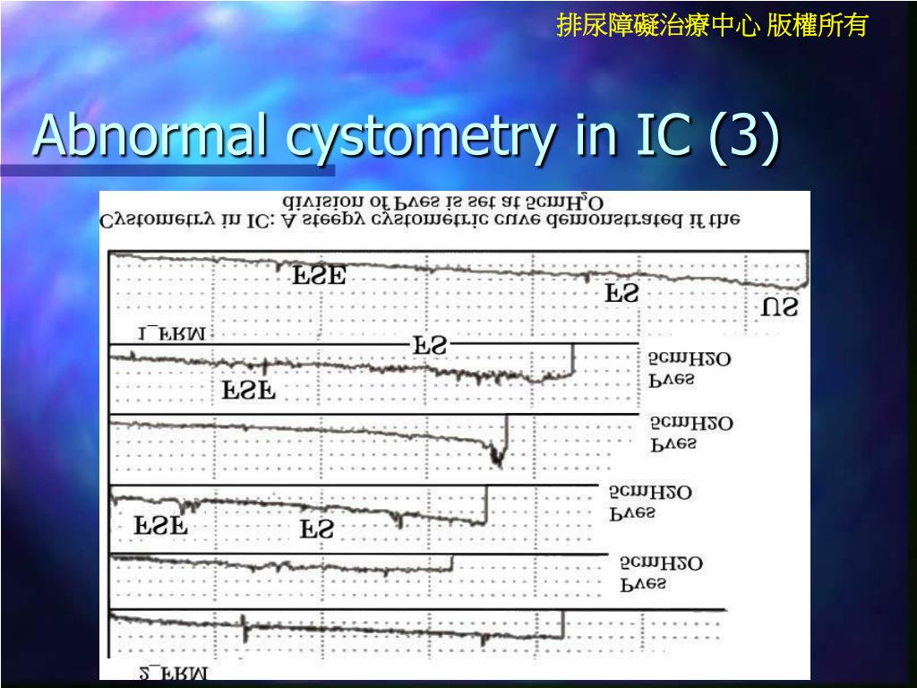 Abnormal cystometry in IC (3)