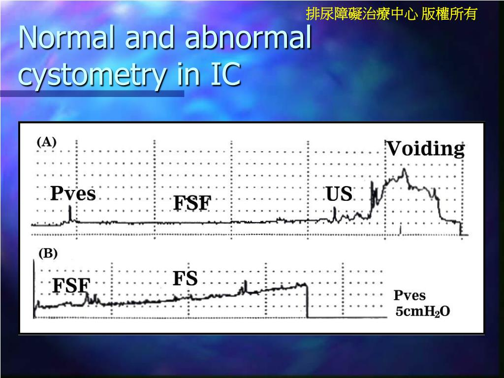 Normal and abnormal cystometry in IC