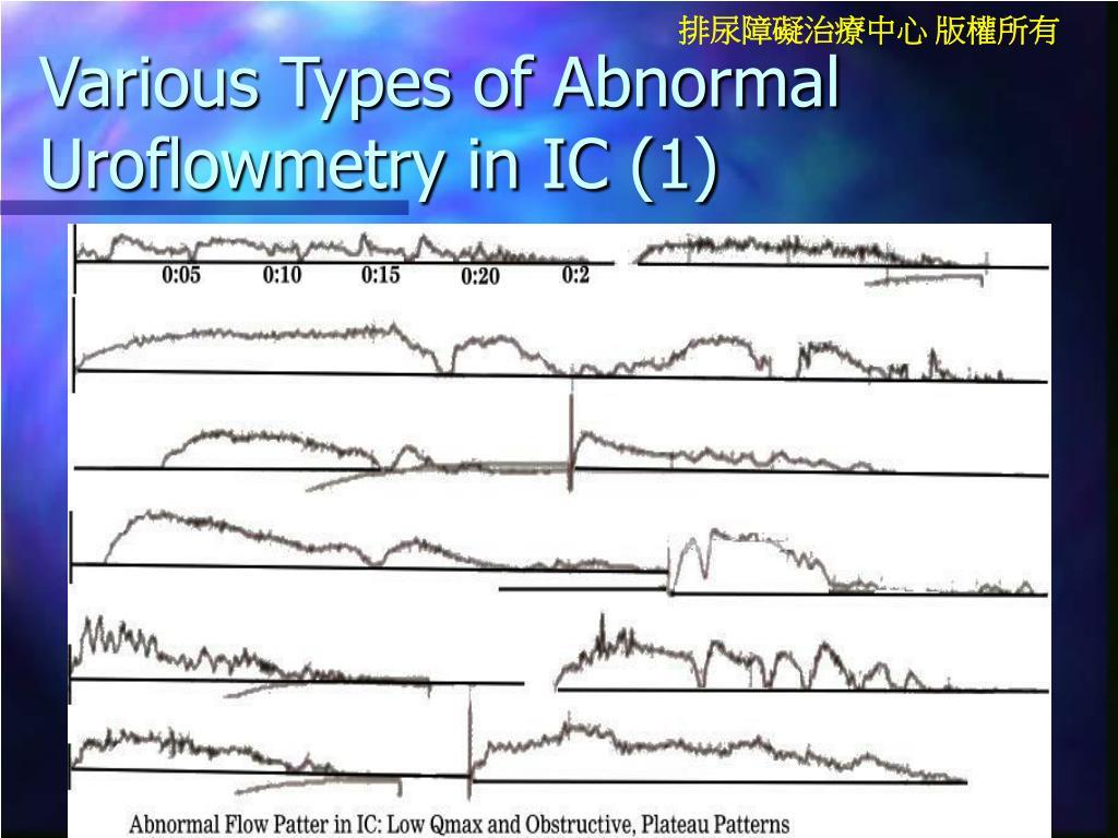 Various Types of Abnormal Uroflowmetry in IC (1)