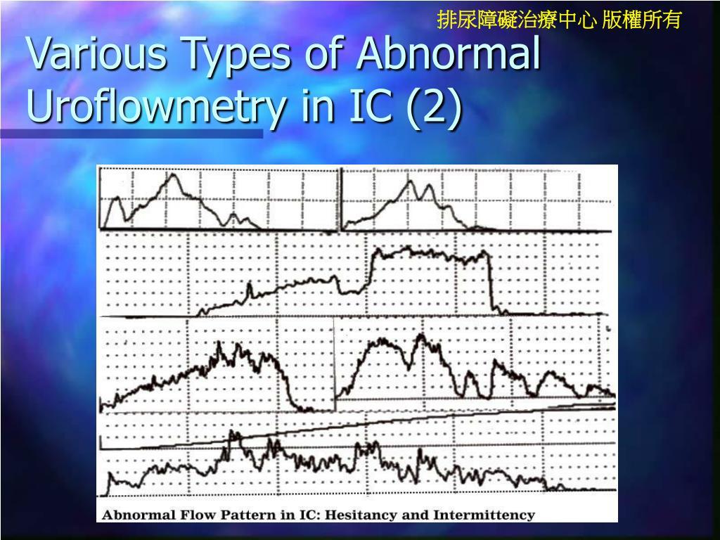 Various Types of Abnormal Uroflowmetry in IC (2)