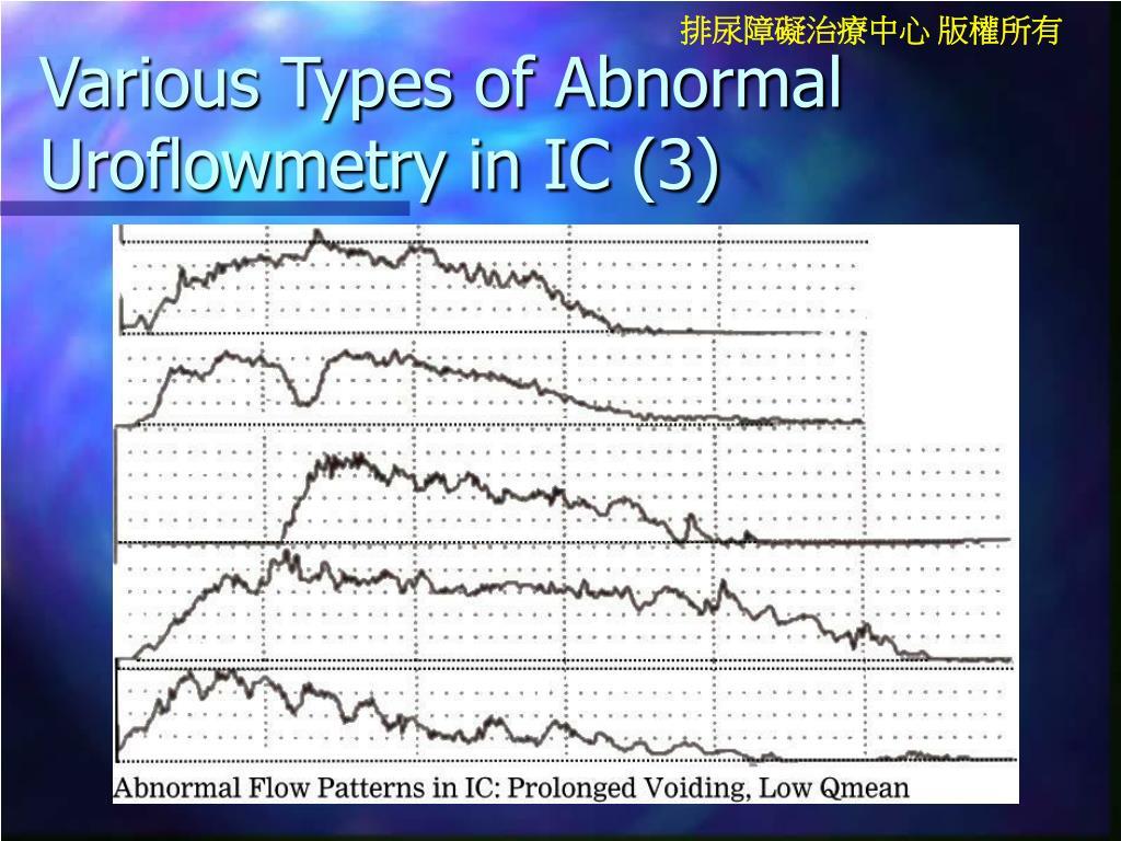 Various Types of Abnormal Uroflowmetry in IC (3)