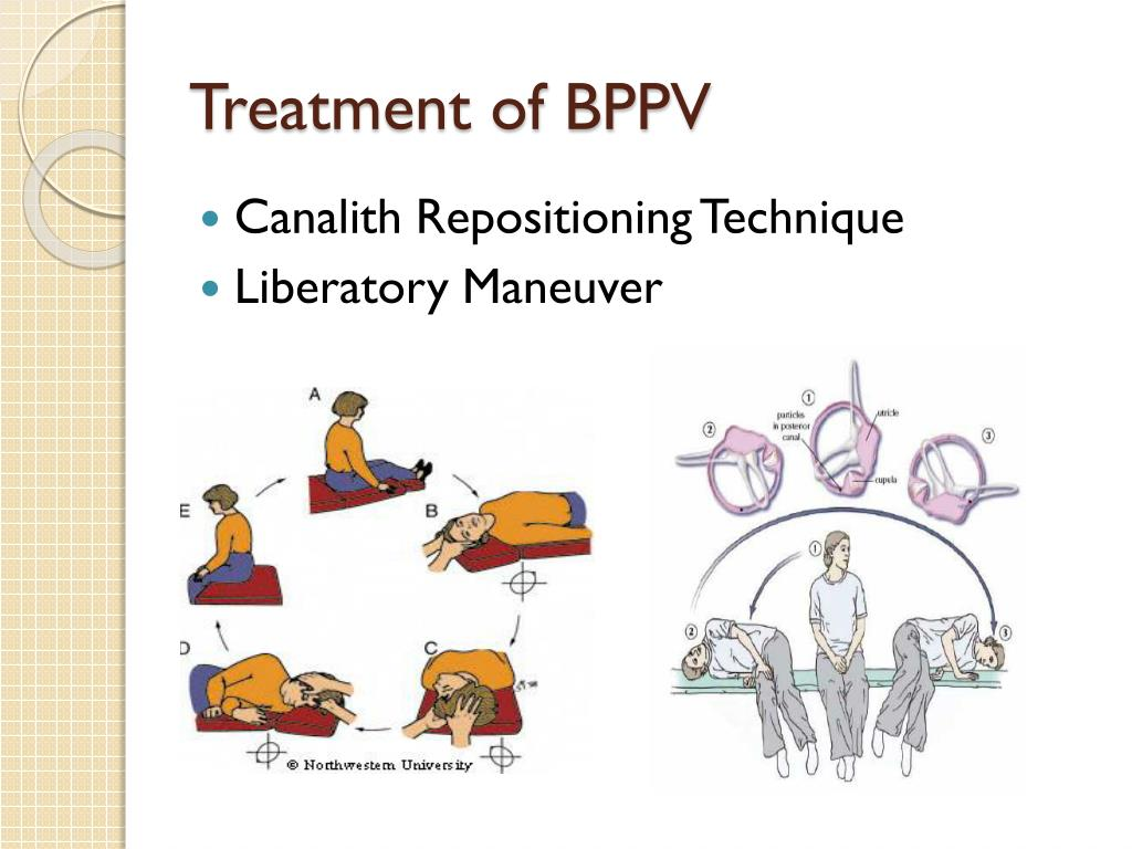Treatment of BPPV