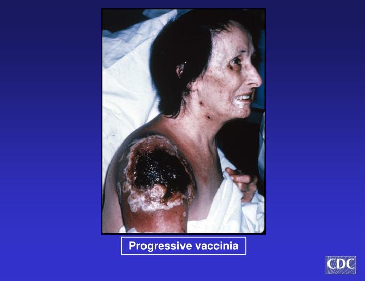 Progressive vaccinia