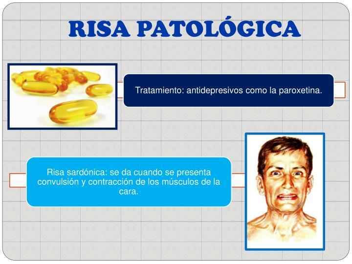 RISA PATOLÓGICA