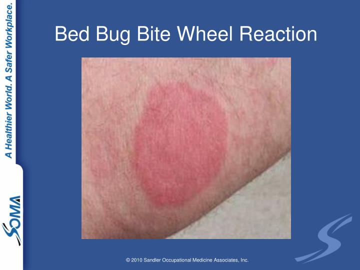 Bed Bug Bite Wheel Reaction