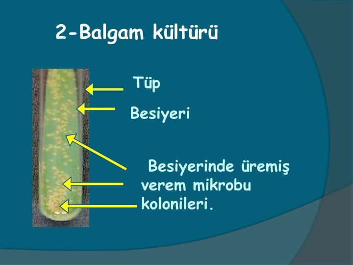 2-Balgam kltr