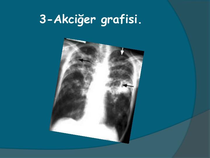 3-Akcier