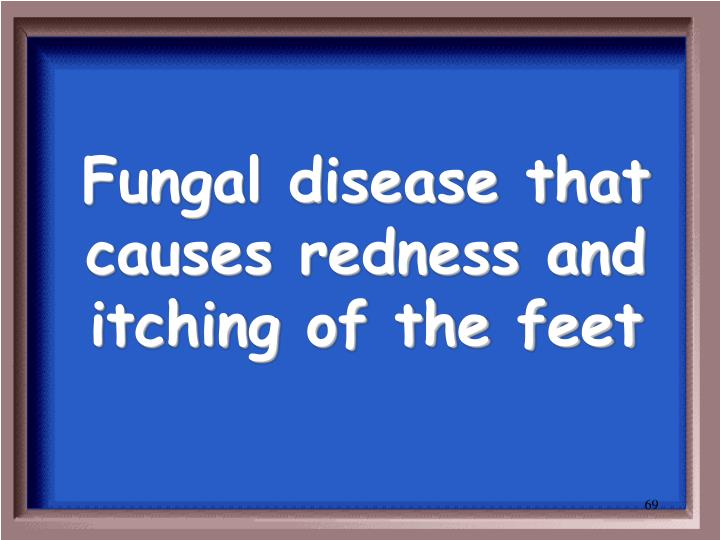 Fungal disease that causes redness and itching of the feet